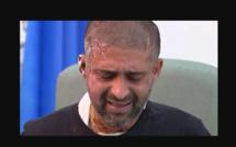 Londres : un adolescent arrêté après plusieurs attaques à l'acide