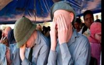 Tanzanie : 34 personnes condamnées à mort pour avoir tué des albinos