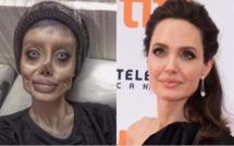 Vidéo-Elle fait plus de 50 opérations pour ressembler à Angelina Jolie