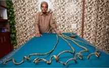 L'homme aux ongles les plus longs du monde a fini par les couper (vidéo)