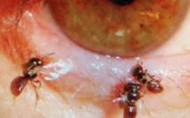 Incroyable mais vrai : Quatre abeilles vivaient sous sa paupière et se nourrissaient de ses larmes