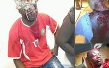 Maroc: Un étudiant guinéen violemment agressé