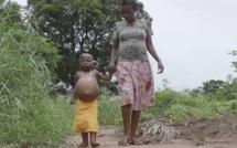 RDC : Une fillette de 6 ans meurt de faim après avoir mangé du sable