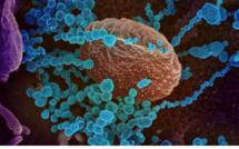 Un stéroïde réduit la mortalité au Covid-19 d'un tiers chez les patients les plus atteints