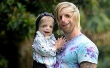 Il va en Australie pour rencontrer un petit garçon au visage déformé. Le message qu'il fait passer est rempli d'espoir.